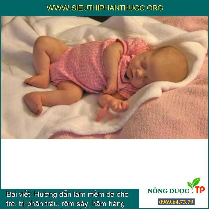 Hướng dẫn làm mềm da cho trẻ, trị phân trâu, rôm sảy, hăm háng cho trẻ sơ sinh bằng dầu Oliu