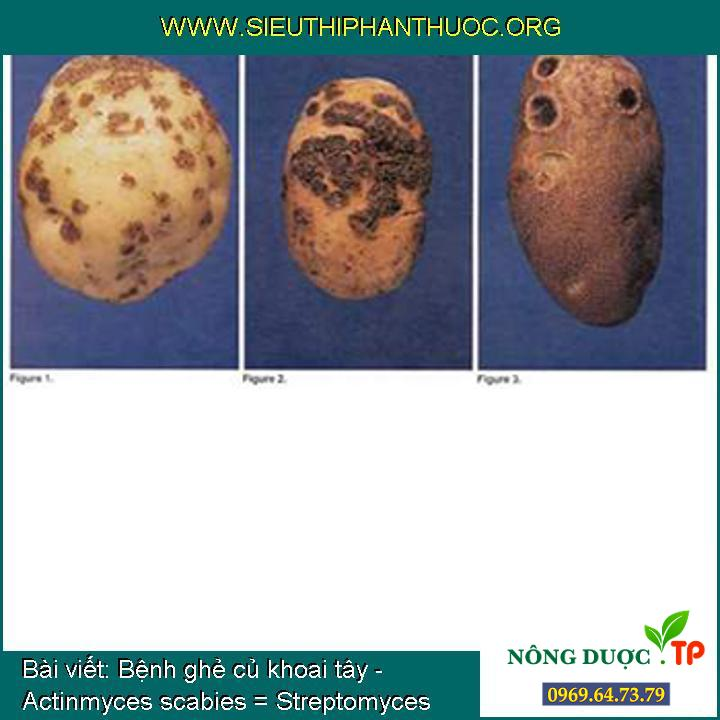 Bệnh ghẻ củ khoai tây - Actinmyces scabies = Streptomyces scabies